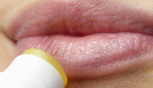 Le labbra screpolate o secche